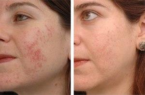 Как Дифферин воздействует на кожу - эффективность, побочное действие
