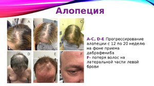 Алопеция или выпадение волос