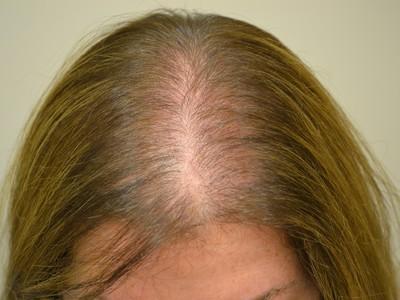 Выпадение волос: причины и лечение у женщин в домашних условиях, причины сильного выпадения волос у женщин