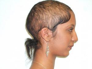 Какие факторы влияют на выпадение волос