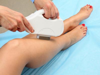 Лазерная эпиляция ног особенности процедуры