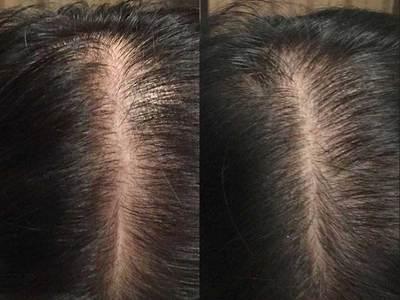 Мезороллер для волос и кожи головы ОТЗЫВЫ