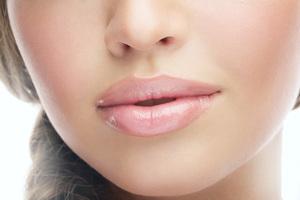 Выполнение контурной пластики губ