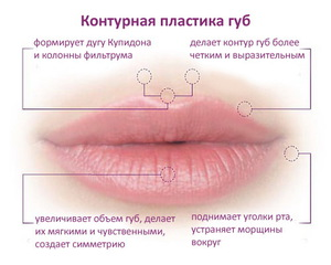 Стоит ли увеличить губы гиалуроновой кислотой.