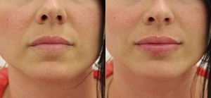 Особенности пластики губ методом VY