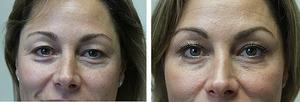 Метод омоложения кожи лица