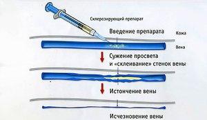 Показания к проведению склерозирования