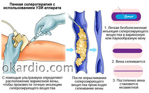 Процедура склерозирования