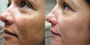 Ретиноевая кислота: маска и пилинг