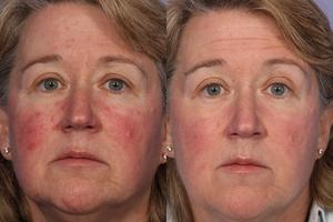 Кислотный пилинг: фото до и после