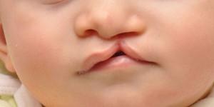 Заячья губа: причины появления