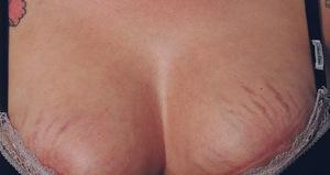Растяжки на груди: причины