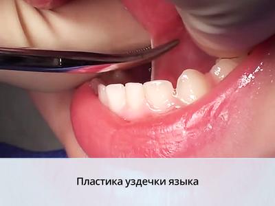Как делается пластика уздечки языка у детей лазером
