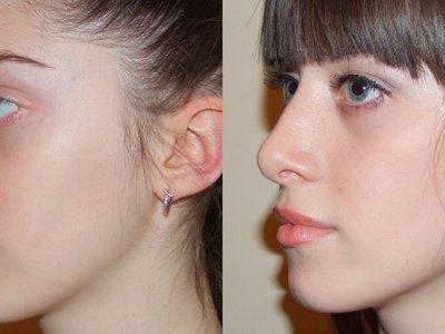Как убрать горбинку на носу разными способами?