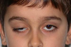 Врожденные глазные болезни