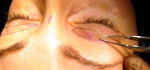 Блефароптоз -операция