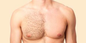 Удаление волос в подмышечной области