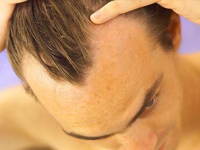 Андрогенная алопеция у мужчин — причины возникновения
