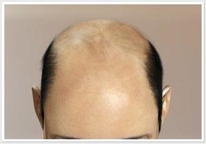 Факторы влияющие на выпадение волос