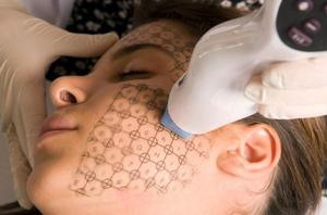Эрбиевый лазер для омоложения кожи