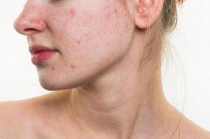 Ультразвуковая чистка лица: показания