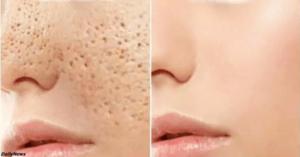 Как решить проблему с кожей