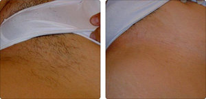 Процедура шугаринга на длинные волосы