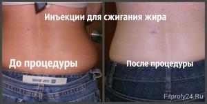 Уколы для похудения
