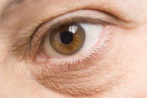 Причины образования глазной грыжи