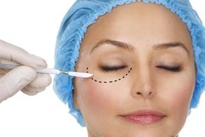 Хирургическое удаление глазной грыжи