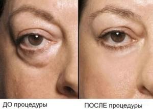Инъекции от грыжи под глазами