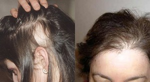 Главные причины ломких волос.